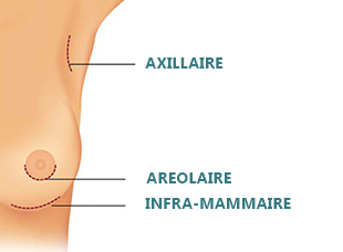 implants mammaires incisions