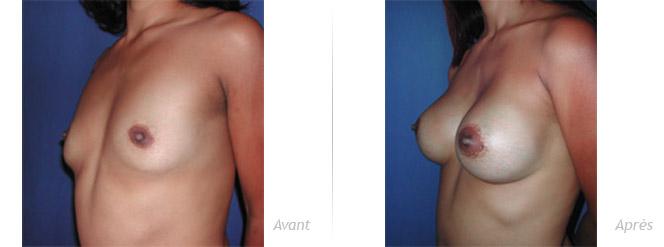 Augmentation mammaire avec prothèses souples