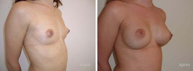 Augmentation mammaire esthétique avec implants mammaires anatomiques