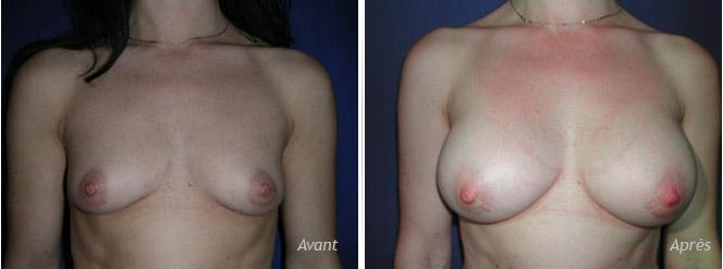 Augmentation mammaire par implants anatomiques asymétriques