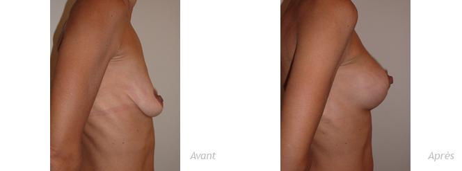 Mastoplastie avec prothèses pour ptôse mammaire - photos - avant_après