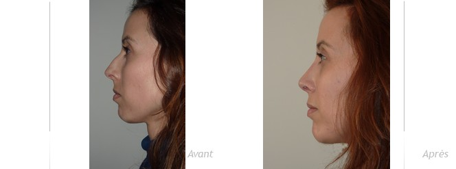 Rhinoplastie et génioplastie d'augmentation par injection du menton - Profiloplastie