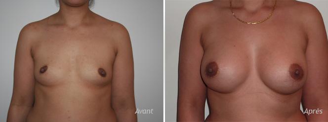 implants mammaires anatomiques retrofascial