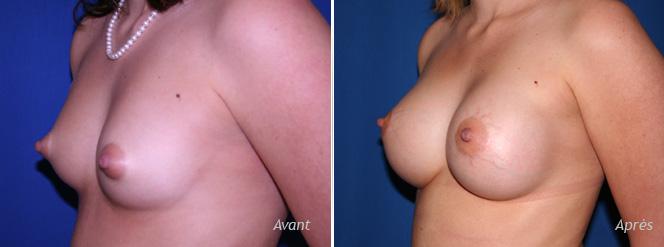 implant mammaire rond prémusculaire résultat photos avant-après