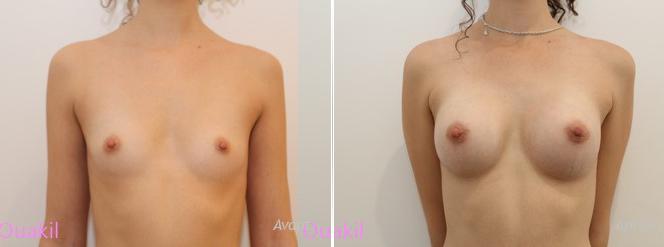 implants mammaires ronds silicone infracturable rétromusculaire avant après