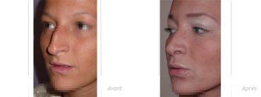résultat rhinoplastie implants lèvres Permalip