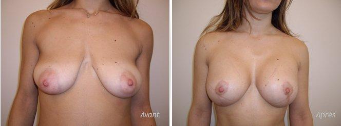 Plastie mammaire et augmentation par implants