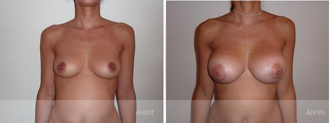 prothèses mammaires par incision de l'arèole - photos avant_après