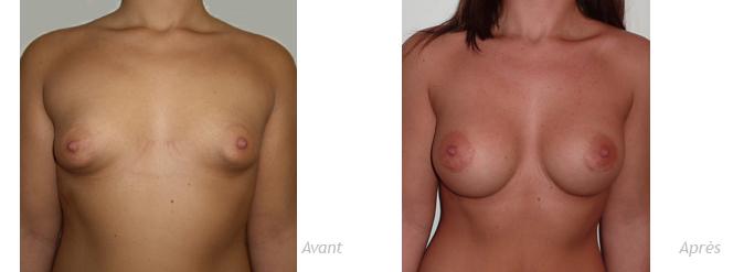 résultat à 3 ans de prothèses mammaires anatomiques pour seins tubéreux