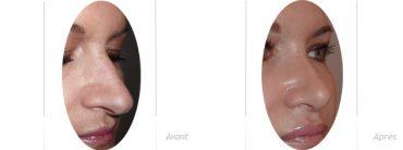 rhinoplastie et blépharoplastie supérieure - photos avant_après