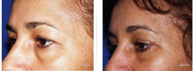 Avant-après blépharoplastie supérieure et inférieure par voie conjonctivale