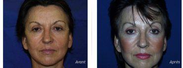 Avant-Après d'une blépharoplastie dans le cadre d'un lifting complet