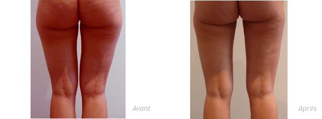 lipoaspiration cuisses et genoux résultat à 3 mois