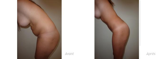 liposculpture abdominale-photos-avant_après