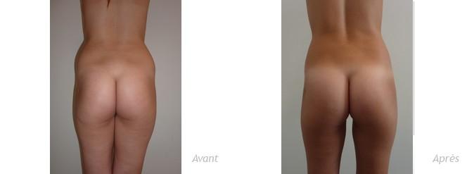liposculpture hanches et cuisses-photos-avant_après