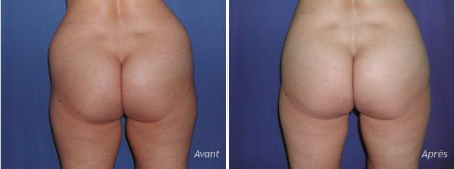 photos avant-après liposculpture des hanches