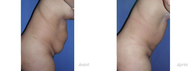 photos avant-après liposculpture ventre