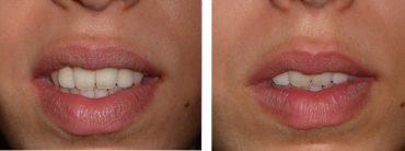 sourire-gingival-avant-après-botox