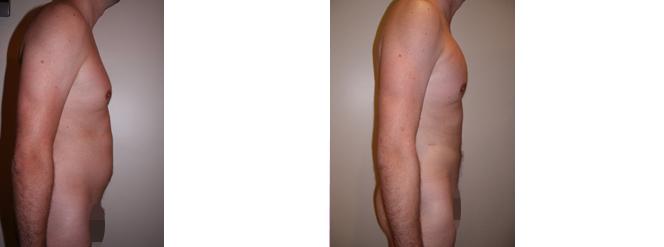 implant pectoral + liposculpture abdominale - avant_apres