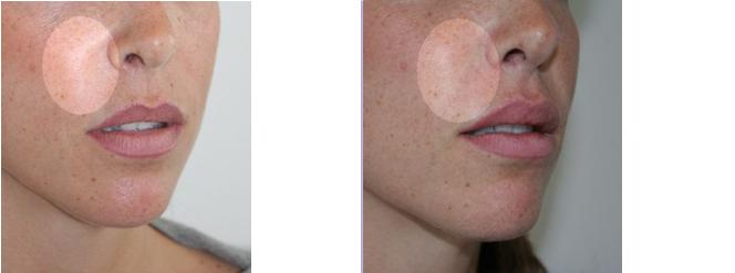 comblement du sillon naso-génien par acide hyaluronique
