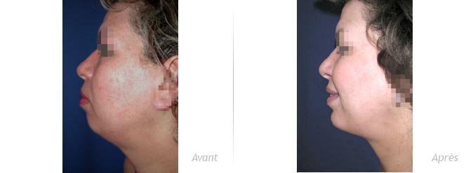 génioplastie par implant associée à une liposculpture du cou