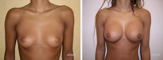 photos de résultat avant après de prothèses mammaires rondes posées par voie axillaire