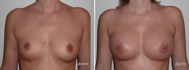 asymétrie-mammaire-implants-asymétriques-avant_après