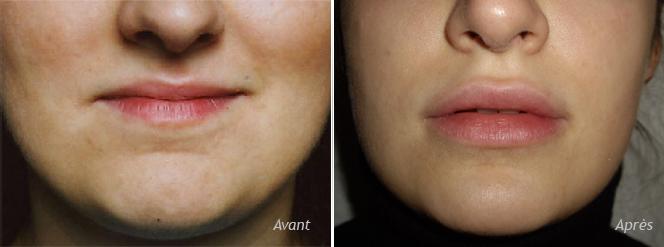 augmentation des lèvres par implants Permalip