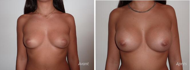 augmentation-mammaire-implant-rond-300-périaréolaire-prémusculaire