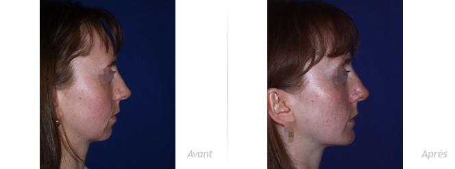 augmentation du menton par implant silicone rigide