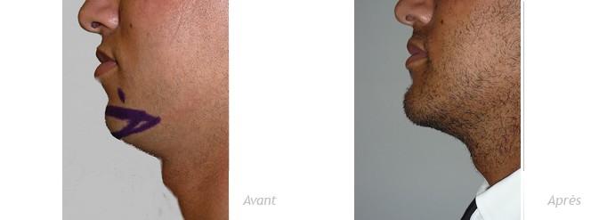 genioplastie-implant-anatomique-menton-homme-photo-avant_après