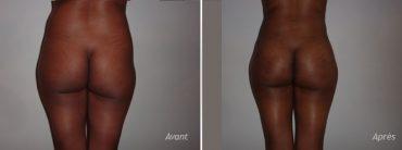 implants fesses liposuccion hanches - photos - avant_après
