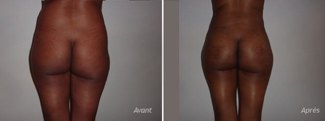 implants fesses liposuccion hanches - photos - avant_après