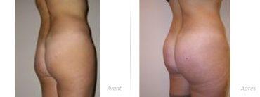 implants-fessiers-volume_330-photos-avant/après