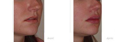 augmentation progressive des lèvres apres 3 sessions en 6 mois