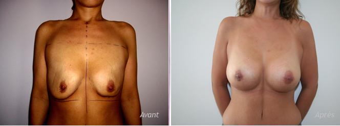 suites d'amaigrissement majeur, implantation mammaire