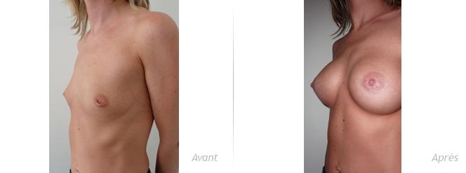 augmentation-mammaire pour reconstruction par implant anatomique plus cure de mamelon invaginé, vue d'ensemble