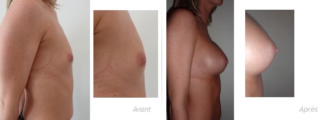reconstruction mammaire par implant anatomique sur hypogénésie majeure et cure d'invagination du mamelon