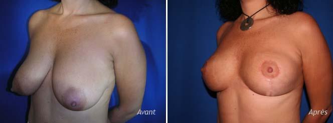 plastie mammaire verticale
