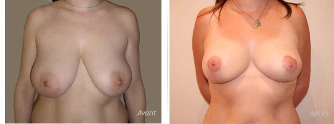 lifting mammaire réduction seins cicatrices