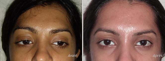 Botox œil de biche