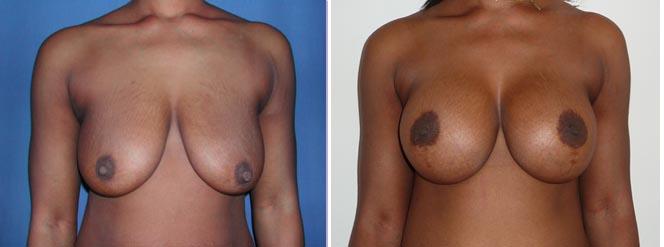 avant/après lifting mammaire implants peau noire