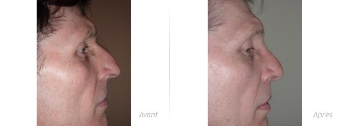 Rhinoplastie-masculine-avant_après-1