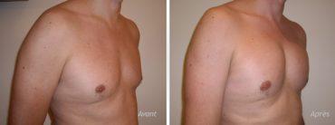 implants pectoraux