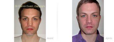 rhinoplastie-avant_apres-reconstruction-implant-Medpor