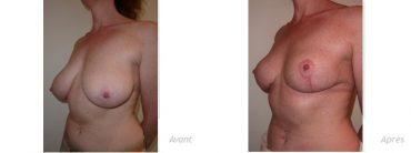 Mammoplastie hypertrophie asymétrie