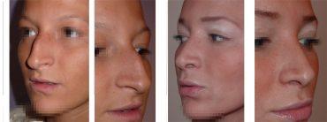 photos résultat rhinoplastie et implants de lèvres Permalip