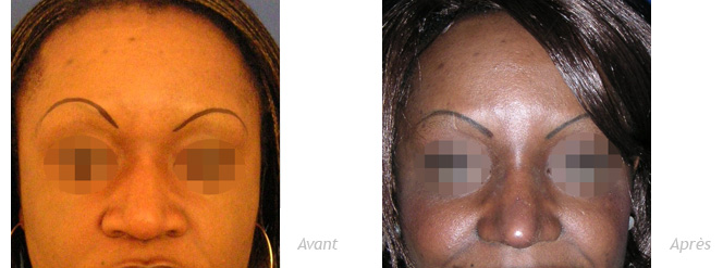 Rhinoplastie ethnique africaine peau noire avant après
