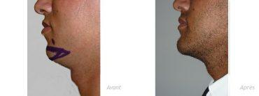 genioplastie-implant-anatomique-menton-homme-photo-