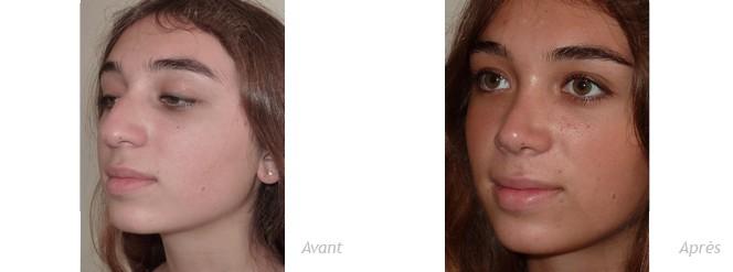 rhinoplastie patiente mineure - photos de trois quart - avant_après